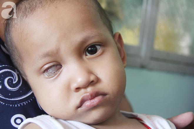Bé gái 3 tuổi bị ung thư mắt, bố mẹ chở phân bò dành dụm từng đồng tìm lại ánh sáng cho con trong vô vọng - Ảnh 12.