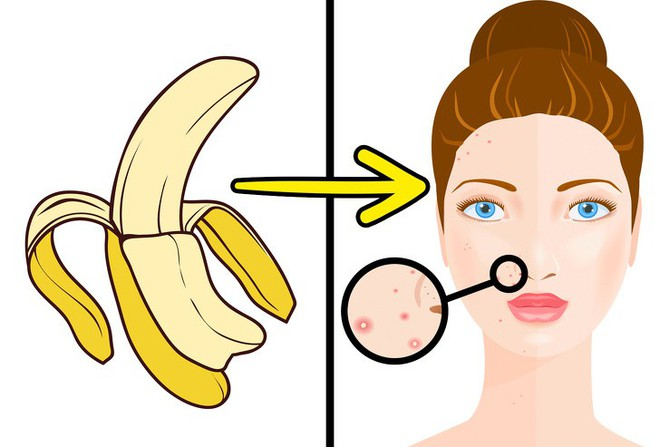5 tác dụng ngạc nhiên chưa của vỏ chuối, từ trị sẹo đến chống lão hóa khiến chị em phải mắt tròn mắt dẹt - Ảnh 1.