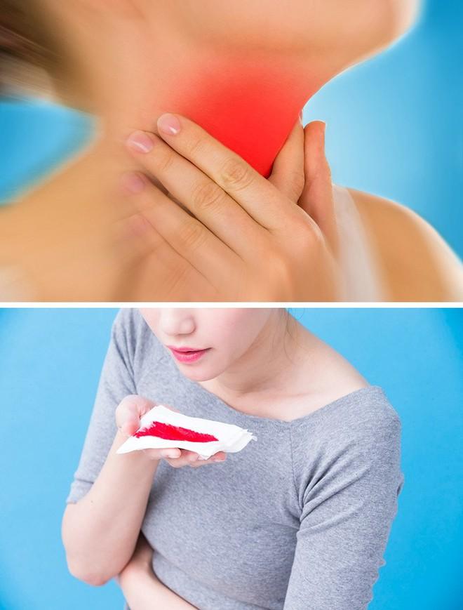 8 biểu hiện tưởng không liên quan đến tim nhưng lại là dấu hiệu cảnh báo tim của bạn đang gặp rắc rối - Ảnh 3.