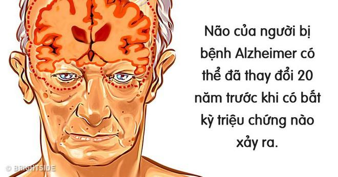 6 cách được chứng minh là có thể ngăn ngừa bệnh suy giảm trí nhớ Alzheimer mà bạn trẻ nào cũng nên làm theo - Ảnh 2.