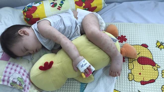 Mẹ tưởng con chỉ bị viêm phổi nhưng cuối cùng lại mắc bệnh lạ nguy hiểm - Ảnh 3.