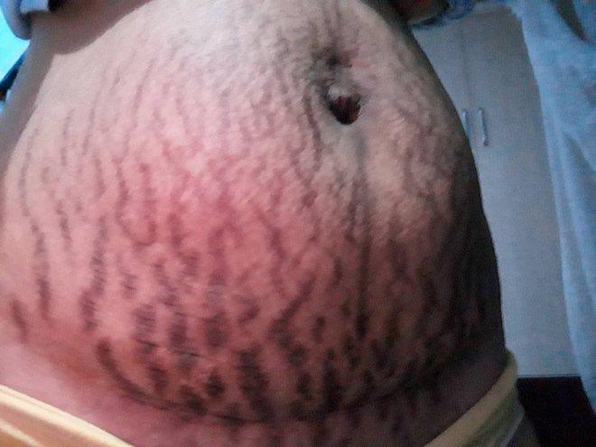 Mẹ 9x chia sẻ những vết rạn sau sinh chằng chịt như đàn giun bò lên bụng - Ảnh 1.
