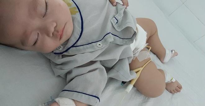 Bé 5 tháng tuổi đau bụng, nôn trớ, mẹ chẳng ngờ con mắc phải căn bệnh mà nghĩ chỉ phụ nữ trưởng thành mới bị - Ảnh 4.
