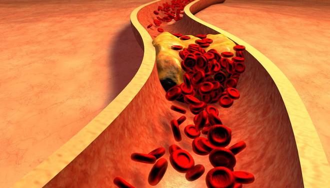Không chỉ tăng cân, cơ thể nạp quá nhiều protein còn gây ra đủ hậu quả tai hại không kém - Ảnh 1.