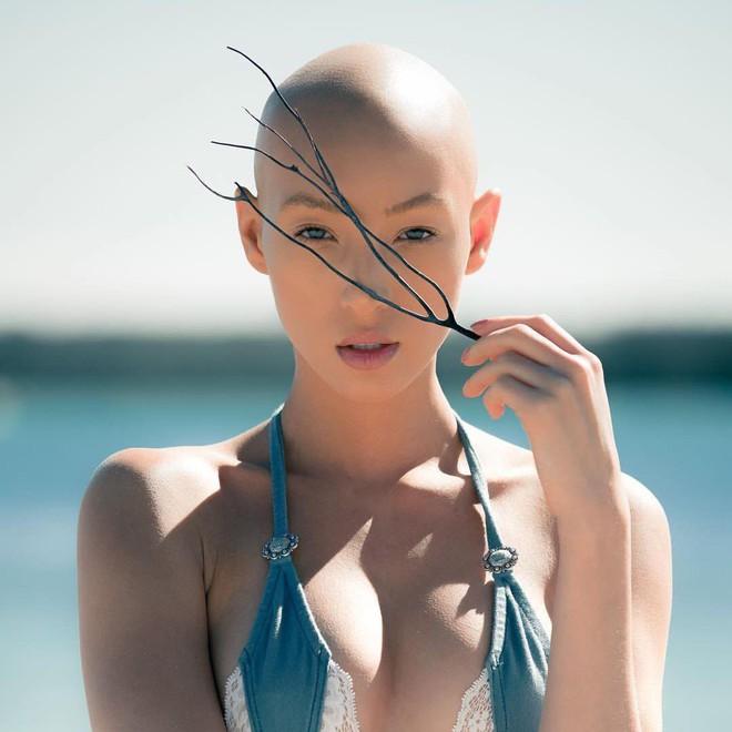 Bị bệnh bẩm sinh, rụng sạch tóc, cô nàng nấm lùn này vẫn được fan cực yêu thích tại Next Top Mỹ! - Ảnh 11.