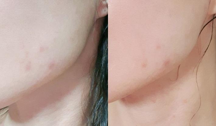 Serum vitamin C lạ hoắc của Hàn giúp làn da của cô bạn này lên tông, mờ thâm, lỗ chân lông nhỏ mịn thấy rõ chỉ sau 10 ngày - Ảnh 4.