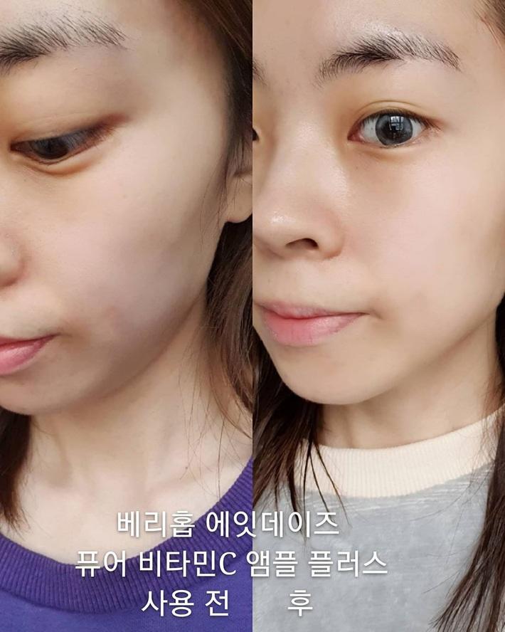 Serum vitamin C lạ hoắc của Hàn giúp làn da của cô bạn này lên tông, mờ thâm, lỗ chân lông nhỏ mịn thấy rõ chỉ sau 10 ngày - Ảnh 5.