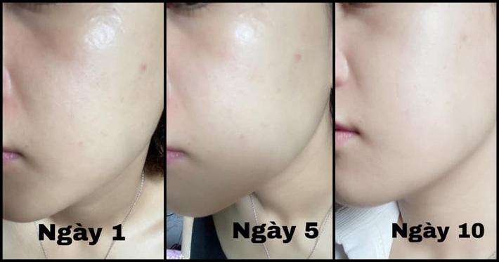 Serum vitamin C lạ hoắc của Hàn giúp làn da của cô bạn này lên tông, mờ thâm, lỗ chân lông nhỏ mịn thấy rõ chỉ sau 10 ngày - Ảnh 1.