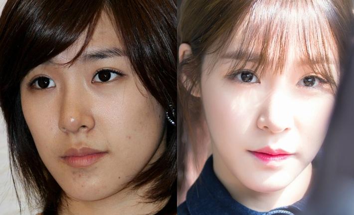Bỏ đi lớp makeup đậm, không ít sao Hàn từng gây ngã ngửa với làn da đen nhẻm, sần sùi lấm tấm mụn - Ảnh 5.