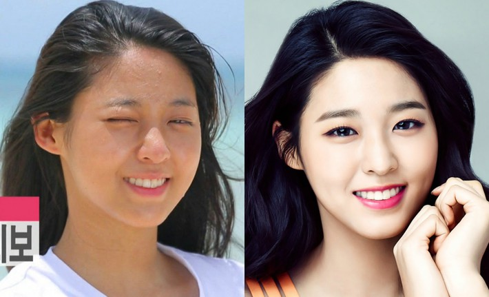 Makeup quá nhiều, loạt idol Hàn cũng khốn khổ vì mụn nhọt tùm lum - Ảnh 4.