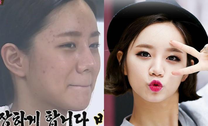 Makeup quá nhiều, loạt idol Hàn cũng khốn khổ vì mụn nhọt tùm lum - Ảnh 7.