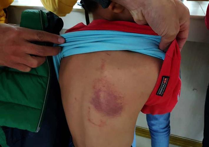 Nữ giáo viên tiểu học ở Hải Phòng đánh học sinh bầm tím lưng bị phạt 5 triệu đồng - Ảnh 1.