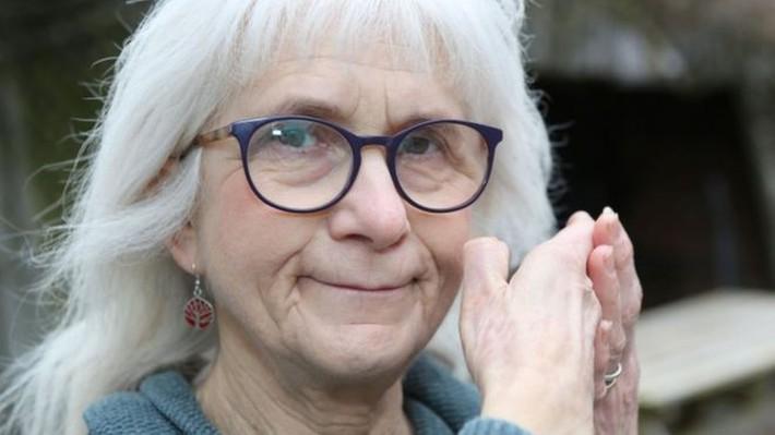 Kì lạ người phụ nữ Scotland cả đời không biết cảm giác đau kể cả khi sinh con - Ảnh 3.