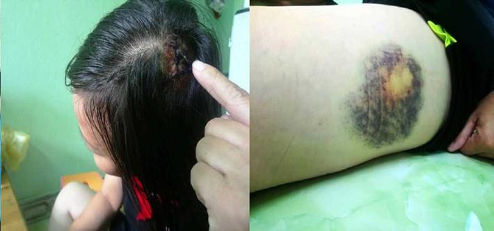 Nữ tài xế taxi bị 2 người đàn ông đánh rách đầu trong bệnh viện ở Huế - Ảnh 1.