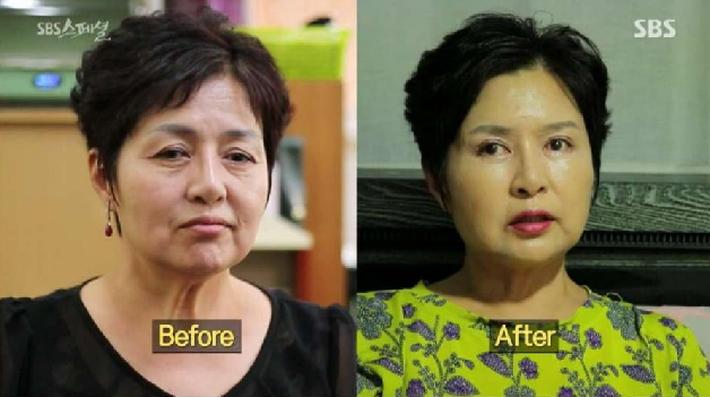 Người phụ nữ 57 tuổi lột xác hoàn toàn sau PTTM nhưng phản ứng trái ngược của người chồng mới gây phẫn nộ - Ảnh 1.