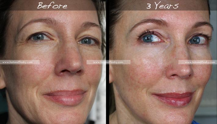 Đắn đo trước hiệu quả chống già của retinol? Minh chứng người phụ nữ sau 3 năm kiên trì với làn da như photoshop sẽ khiến bạn thay đổi - Ảnh 1.