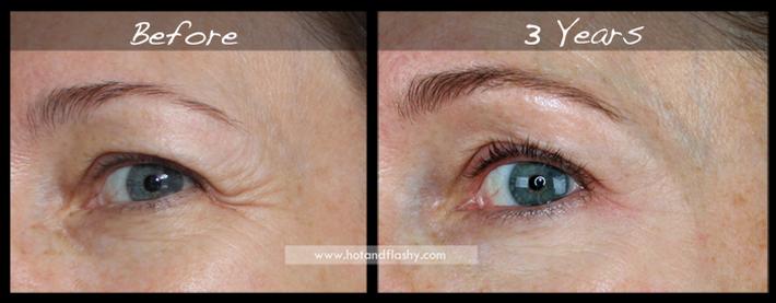 Đắn đo trước hiệu quả chống già của retinol? Minh chứng người phụ nữ sau 3 năm kiên trì với làn da như photoshop sẽ khiến bạn thay đổi - Ảnh 4.