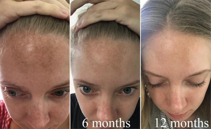 Biến da thâm sạm thành sáng mịn không tỳ vết, nàng blogger tiết lộ combo serum vitamin C và kem chống nắng thần thánh - Ảnh 2.