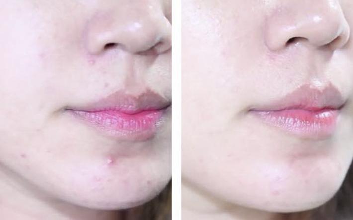 Nuoc-Hoa-Hong-Tri-Mun-Dokudami-Natural-Skin-7