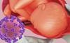 Loại virus nguy hiểm này có khả năng lây truyền từ mẹ sang con trong quá trình mang thai, khiến các tế bào não của thai nhi chết dần