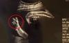 Bức ảnh siêu âm chụp lại khoảnh khắc em bé giơ tay chữ V như để nói với mẹ