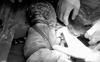 Hiếm gặp: Một em bé chào đời với 6 vòng dây rốn quấn chặt từ cổ chéo xuống bụng, bác sĩ khẳng định quá may mắn