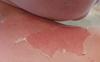 Bà mẹ hốt hoảng phát hiện da của con bong thành từng mảng, toàn thân đau nhức sau khi bôi kem chống nắng