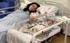 Sau sinh vết mổ chuyển màu đen và bốc mùi khó chịu, mẹ trẻ kinh hoàng phát hiện mình nhiễm vi khuẩn ăn thịt người
