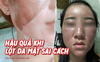 """Tự ý lột da mặt để mong sở hữu làn da đẹp bằng những cách được đồn thổi trên MXH, nhiều chị em lĩnh hậu quả cay đắng với gương mặt """"tan nát"""""""