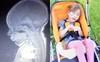 Sinh ra đã khuyết thiếu bộ phận quan trọng trên cơ thể, bất chấp lời cảnh báo của bác sĩ bé gái này đã làm được điều kì tích sau 6 năm khiến ai nấy đều sửng sốt