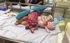 Thấy con mọc mụn trên đầu, mẹ chủ quan đoán nóng trong, nào ngờ con suýt nguy hiểm đến tính mạng vì căn bệnh này