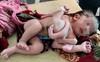 Mẹ bầu không siêu âm, sinh ra con có 3 tay 4 chân ở Ấn Độ