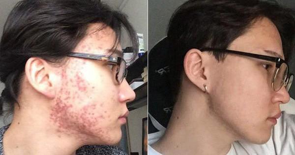 Sau 2 năm khổ vì mụn tấy đỏ, mặt anh chàng này đã thay đổi bất ngờ kể từ khi chuyển sang dưỡng da kiểu Hàn