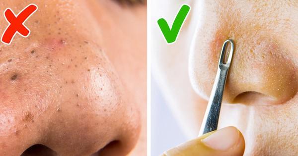 5 phương pháp chăm sóc da cực đơn giản mà chị em nên nhớ để tránh xa đám mụn đầu đen đáng ghét