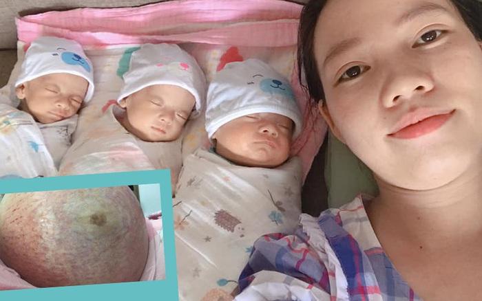 Mẹ trẻ mang thai 3 bụng rạn rướm máu ai nhìn cũng xót, sinh xong một mình chăm 3 bé nhiều lúc stress không muốn nhìn mặt con
