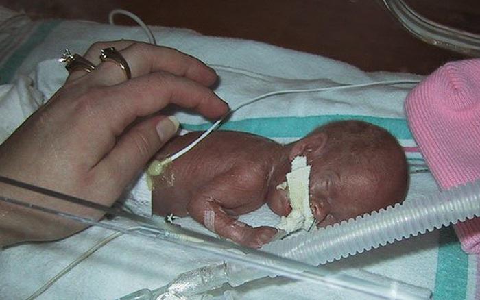Bào thai bị chẩn đoán ngừng phát triển, bé gái chào đời nặng 0,3kg với cánh tay chui lọt chiếc nhẫn cưới và kỳ tích ngoạn mục khiến ai cũng há hốc