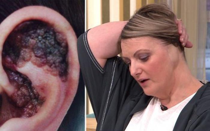 Nằm giường phơi nắng, một phụ nữ phải cắt cụt tai do ung thư da - xổ số ngày 07122019