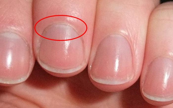 4 dấu hiệu lạ trên tay cho thấy thận có thể đang suy yếu, cần theo dõi ...