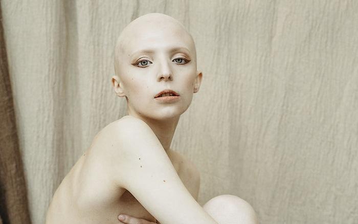 Bộ ảnh tôn vinh vẻ đẹp của những người phụ nữ khuyết tật và khác biệt khiến ...