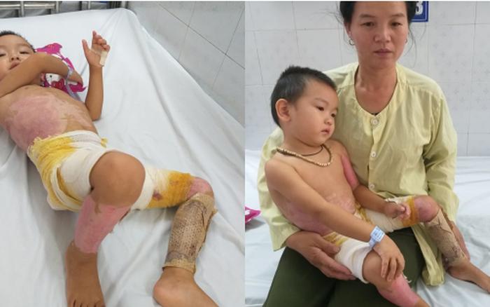 người mẹ hiếm muộn cầu cứu con trai bị bỏng nặng