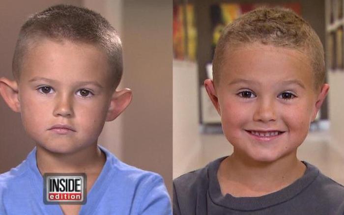 Con trai bị bạn bè chế nhạo vì có đôi tai vểnh ngược như ...