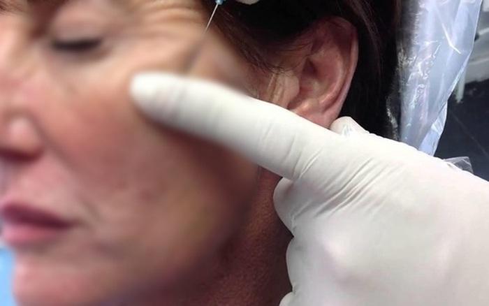 """Cấy chỉ căng da mặt, người phụ nữ phải """"lột toàn bộ da mặt vùng cấy ..."""