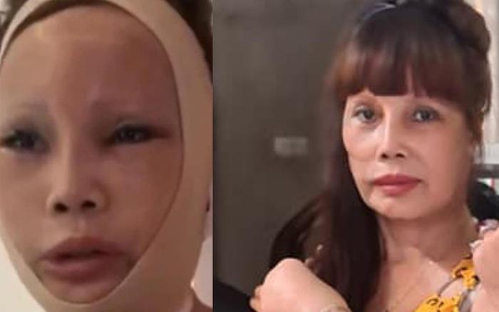 Cô dâu 62 tuổi để lộ khuôn mặt sau teo tóp, thiếu cân đối ...