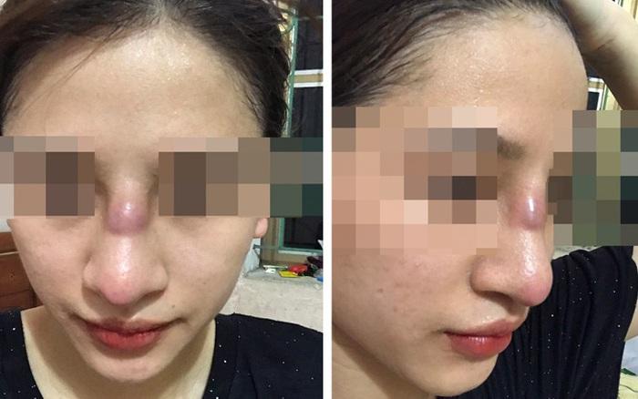 Bị áp xe nhiễm trùng mũi sau nâng mũi bằng phương pháp đặt sụn ...