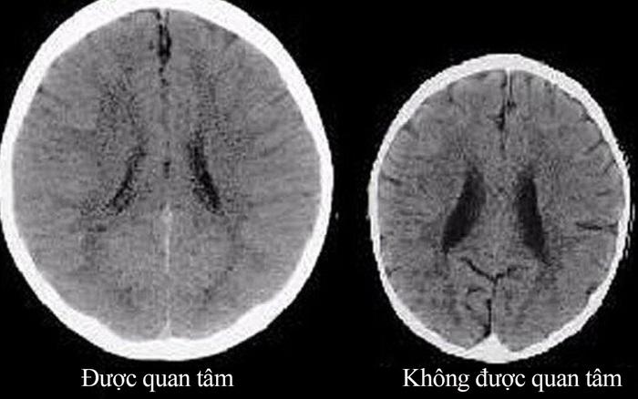 Vừa trông con vừa xem điện thoại cũng ảnh hưởng đến sự phát triển não bộ của ...