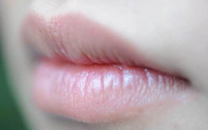 Cứ xuất hiện 8 dấu hiệu này trên đôi môi là cảnh ...