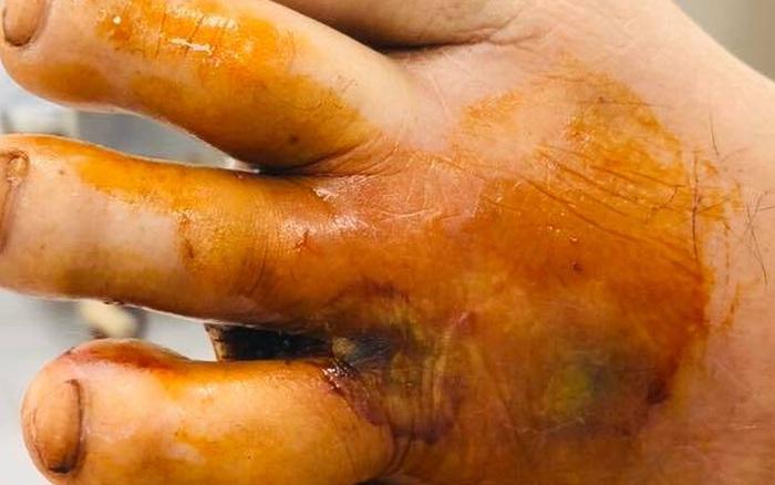Phát hiện thêm 1 trường hợp mắc căn bệnh đồn đoán ăn thịt người ở Việt Nam
