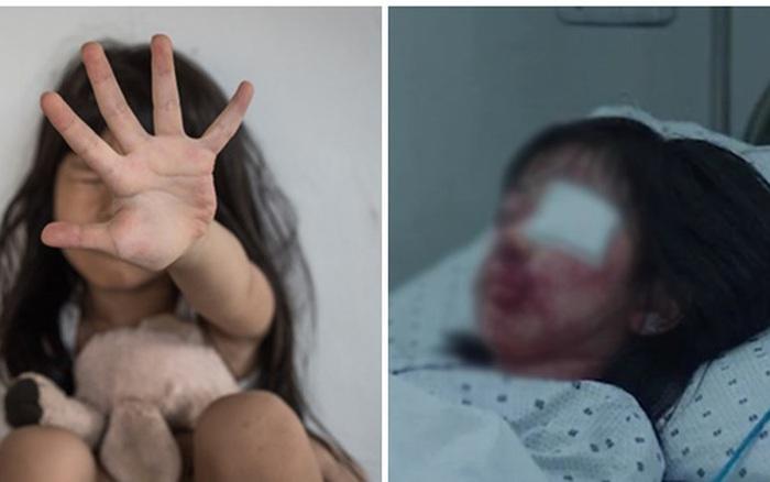 Bé gái 6 tuổi bị tổn thương vùng kín nặng nề sau khi bị yêu râu xanh bắt cóc và cưỡng hiếp gây rúng động dư luận Ấn Độ