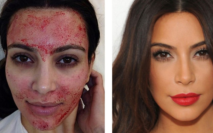 Lấy máu làm đẹp da: Phương pháp làm đẹp da được nhiều người nổi tiếng lăng xê nhưng có những điều ai cũng cần ghi nhớ trước khi làm