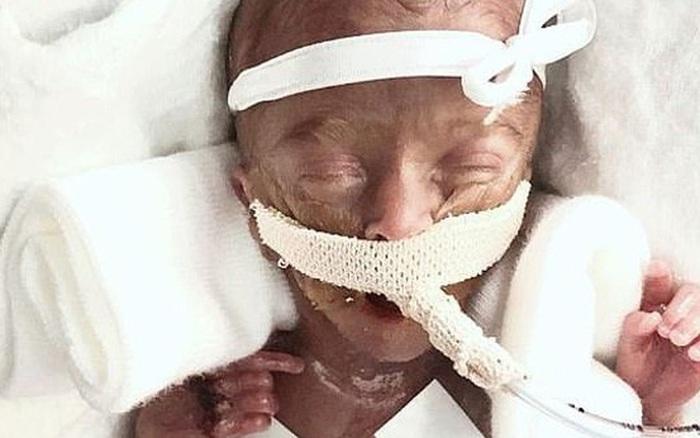 Chị song sinh đã qua đời, bé gái sinh non siêu nhỏ chỉ có 10% cơ hội sống sót đang làm nên kỳ tích khiến nhiều người xúc động